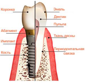 аллергия на импланты зубов