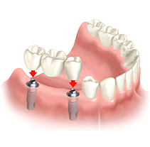 Установка коронки зуба на имплант