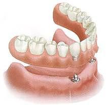 Установка протеза челюсти на импланты