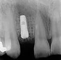 Вид импланта на R-грамме