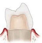 Несъёмное протезирование зубов - зубные коронки