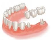 Протезирование зубов на мостах